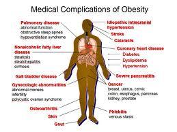 Obesity 01