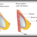 Is Breast Augmentation or Enlargement operation useful or harmful?