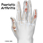 Understanding psoriasis and psoriatic arthritis can help you take control of your health