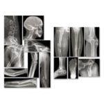 Roylco® Broken Bones X-Rays™ Reveals at Common Breaks to a Variety of Human Bones