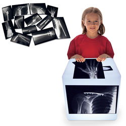 Roylco® Fixed Bone X-Rays