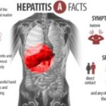 Hepatitis A is a Liver disease with Fever, Malaise and Loss of Appetite Symptoms